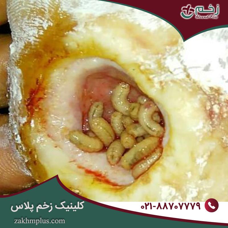 زخم پای دیابتی و محصولات مراقبت از زخم