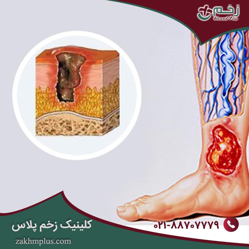 زخم های واریسی و اختلالات عروقی