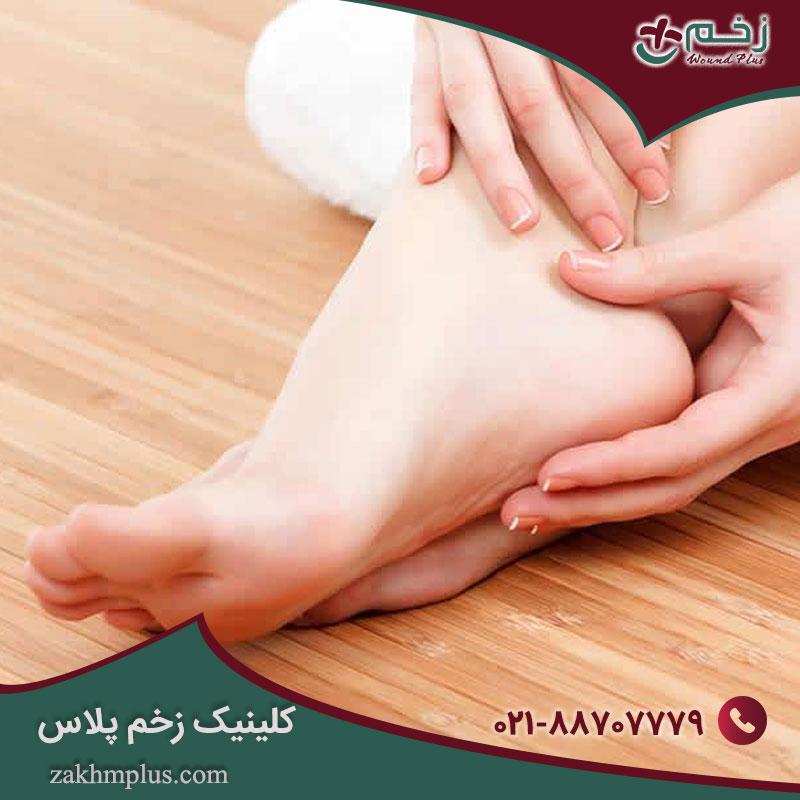 اختلالات پای دیابتی