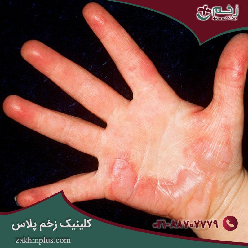 سوختگی: انواع ، درمان ها و موارد دیگر