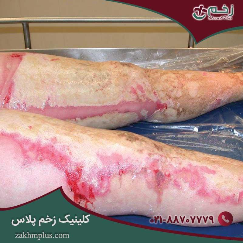اقدامات اولیه برای زخم های سوختگی شدید