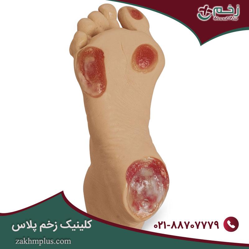روش هایی ساده برای جلوگیری از زخم های فشاری پاشنه پا
