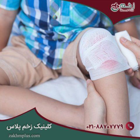 نحوه مراقبت از زخم کودک