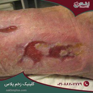 درمان زخم مزمن