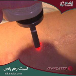 آنچه باید درباره درمان زخم ها با لیزر بدانید!