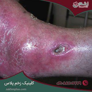 عفونت زخم: شناسایی ، علائم ، تشخیص و درمان