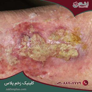تشخیص و درمان زخم عفونی