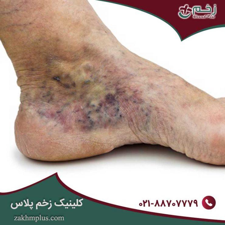 درمان زخم واریس