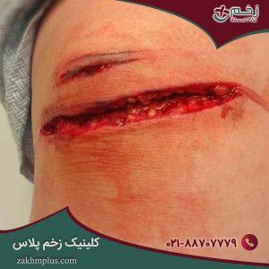زخم باز چیست؟