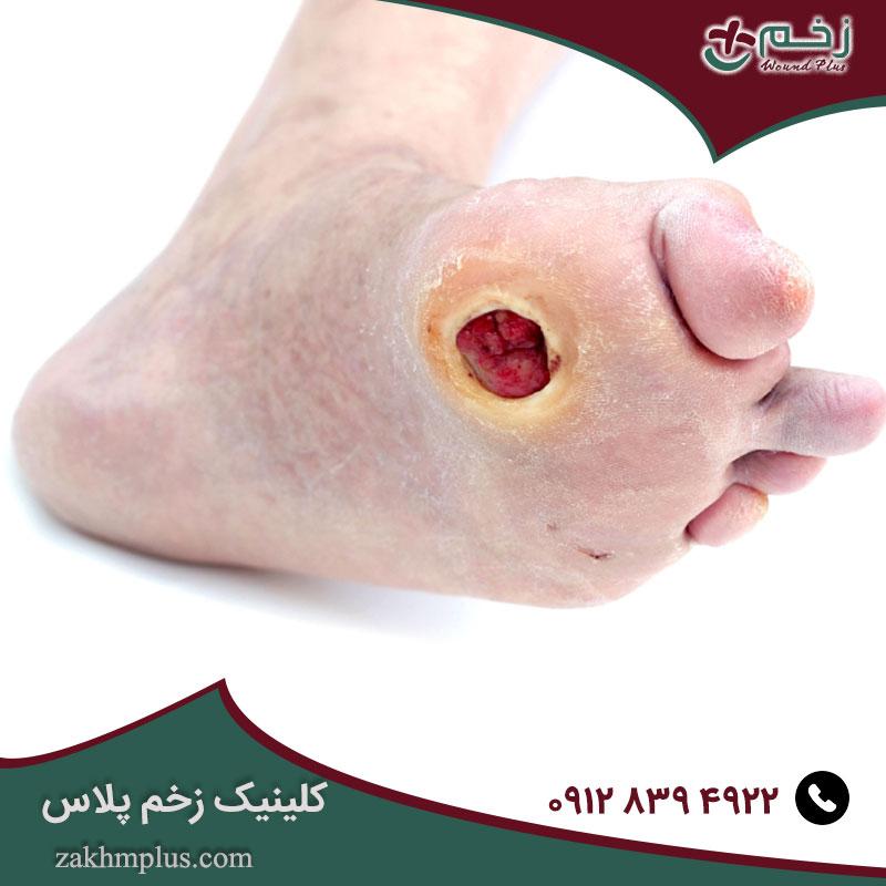 زخم پا در بیماران دیابتی