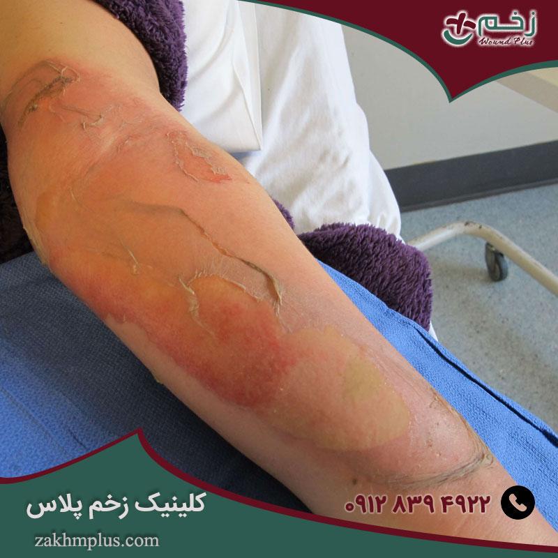 درمان زخم سوختگی