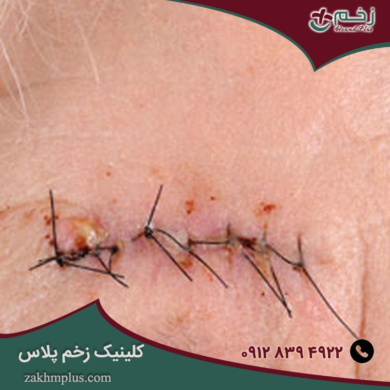 عفونت زخم جراحی