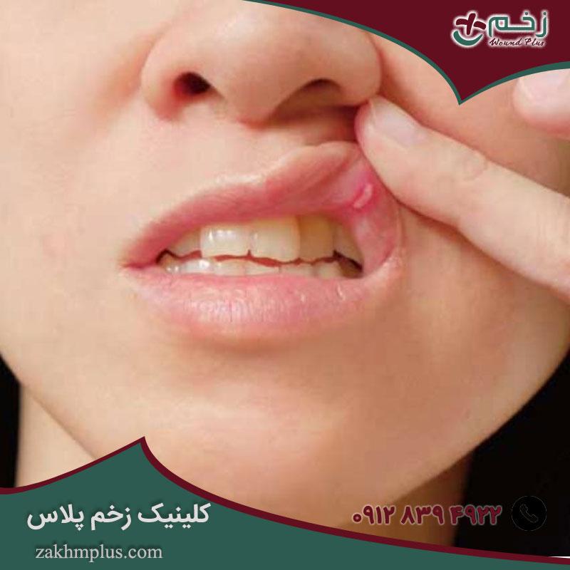 زخم دهان و روش درمان آن