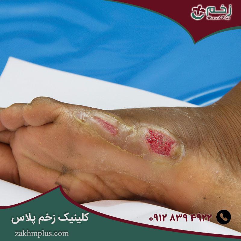 مرکز تحلیل و درمان زخم ها