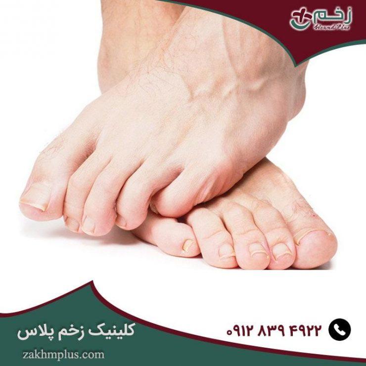 سندرم پای دیابتی