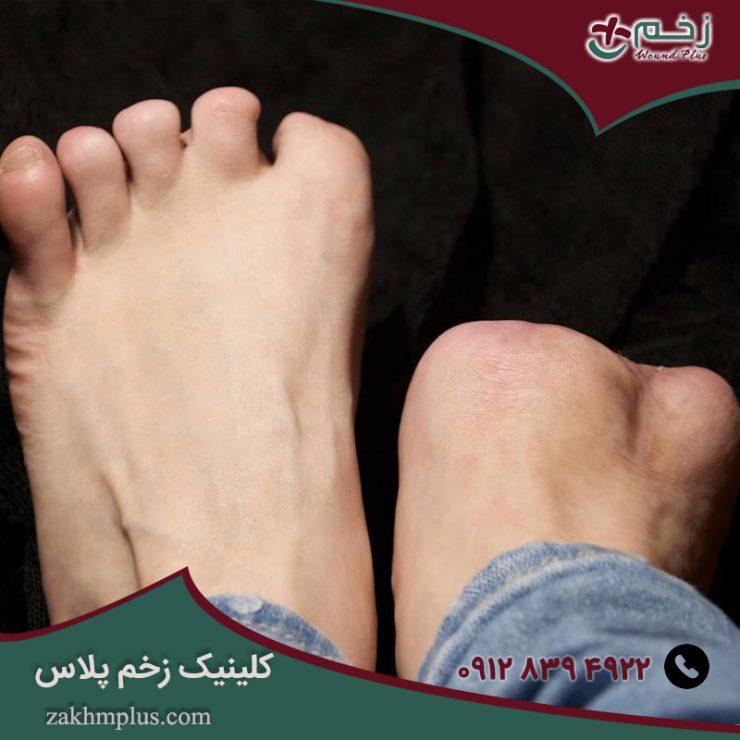 آیا قطع پا در زخم پای دیابتی ضروری است؟