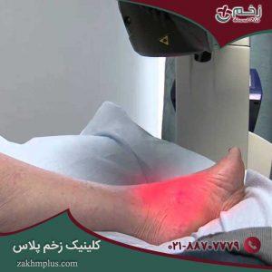 آشنایی با مزایا و معایب لیزر درمانی زخم ها
