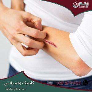 دلیل خارش زخم در هنگام بهبود چیست؟